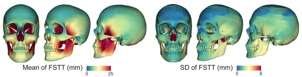 Statistic of the FSTT on a mean skull