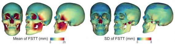 FSTT по поверхности черепа