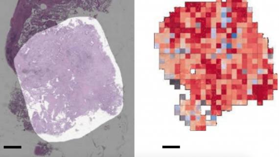 нейросеть обнаружение рака легких на ранних стадиях