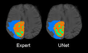 u-net medical segmentation