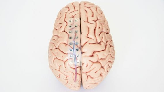 Нейросеть учится транслировать мозговую активность в понятную речь
