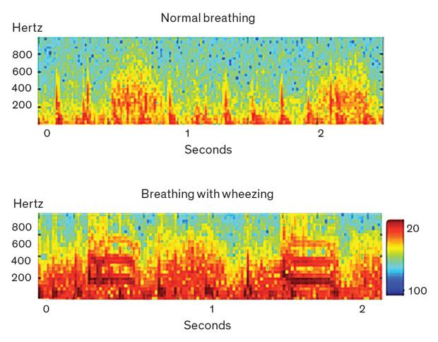 машинное обучение пневмония